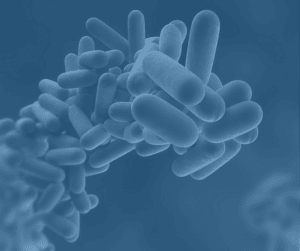 How To Manage Legionella?
